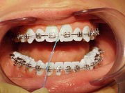Orthodontic Flossing