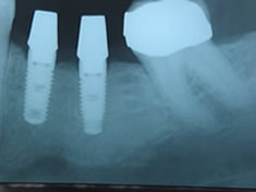 implant crowns xray