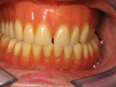After Implant Retained Lower Denture