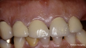Crown Lengthening Before Surgery