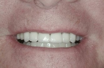 Cosmetic Implant Smile