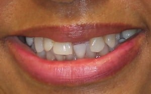 CASE 2: Failing maxillary dentition requiring removal of all the upper teeth - smiling