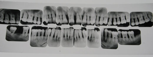 x-rays showing a person losing all of their teeth due to bone and periodontal disease