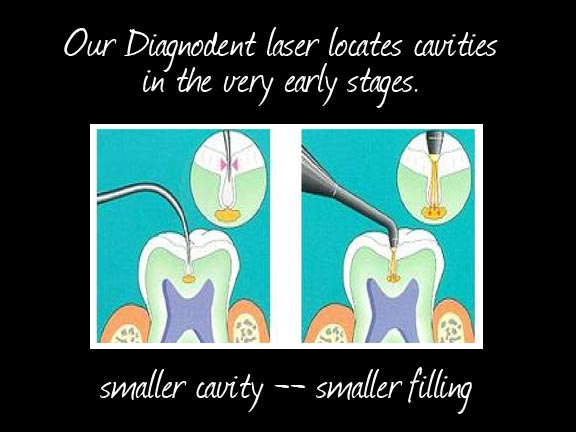 Bridgewater Family Dental photo of advanced dental technology DiagnoDent laser finds cavities in early stages