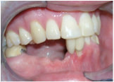 Bridgewater Family Dental photo of after tooth extraction, after dental implant and dental bone graft
