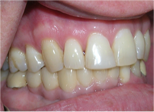 Bridgewater Family Dental photo of after dental tooth extraction