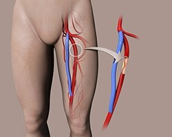 Leg Bypass with Vein or Prosthetic Graft