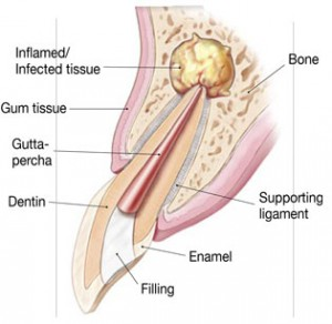 Illustration of the infection at the root-tip of a tooth
