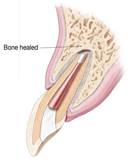 Illustration of the healed bone surrounding the root tip
