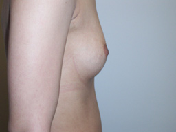 A08-breast-augmentation-side-before