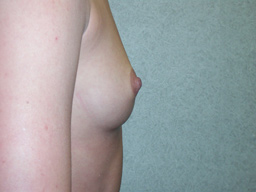 A11-breast-augmentation-side-before