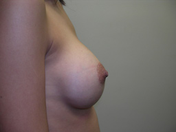 A12-breast-augmentation-side-after
