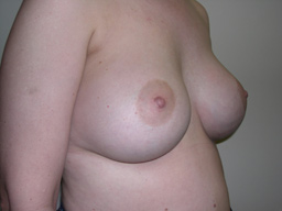 A15-breast-augmentation-angle-after
