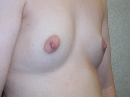 A15-breast-augmentation-angle-before