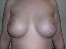 A15-breast-augmentation-front-after