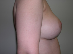 A15-breast-augmentation-side-after