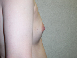 A15-breast-augmentation-side-before