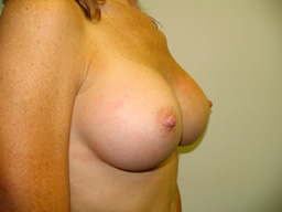 A16-breast-augmentation-angle-after