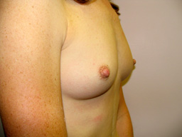 A16-breast-augmentation-angle-before