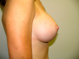 A16-breast-augmentation-side-after