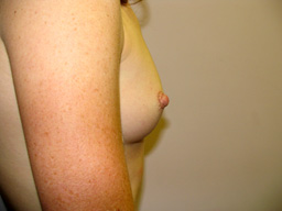 A16-breast-augmentation-side-before