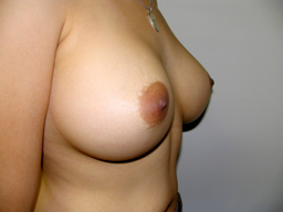 A19-breast-augmentation-angle-after