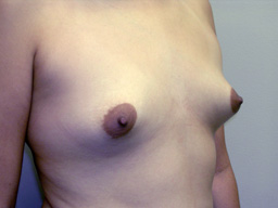 A19-breast-augmentation-angle-before