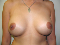A19-breast-augmentation-front-after