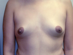 A19-breast-augmentation-front-before