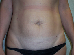 AB03-tummy-tuck-front-before