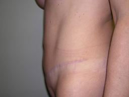 AB03-tummy-tuck-sideright-after