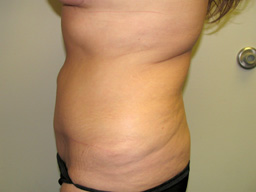 AB11-tummy-tuck-sideright-after