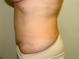 AB12-tummy-tuck-sideright-after