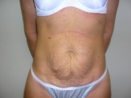 AB15-tummy-tuck-front-before