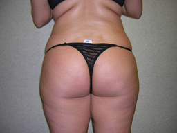 L02-liposuction-back-before