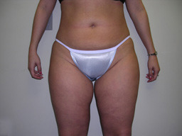 L02-liposuction-front-after