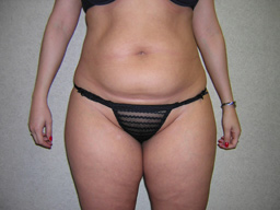 L02-liposuction-front-before