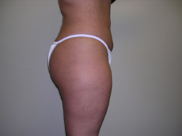 L02-liposuction-sideleft-after