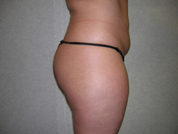 L02-liposuction-sideleft-before