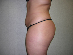 L02-liposuction-sideright-before