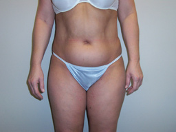 L04-liposuction-front-before