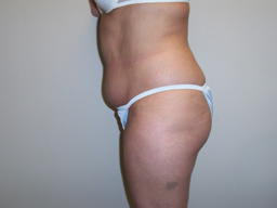 L04-liposuction-sideright-before