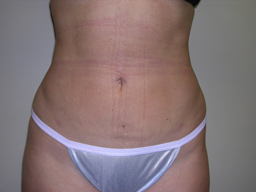 L06-liposuction-front-after