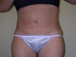 L07-liposuction-front-after