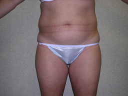 L07-liposuction-front-before