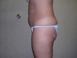 L07-liposuction-sideright-after