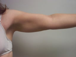 ar02-liposuction-arms-left-after