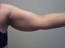 ar02-liposuction-arms-left-before