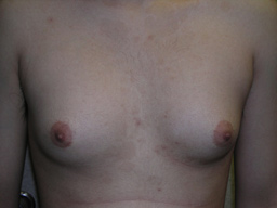 GY02-gynecomastia-front-before