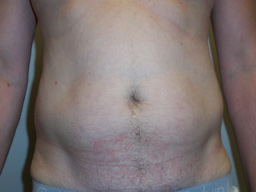 LM03-liposuction-men-front-before